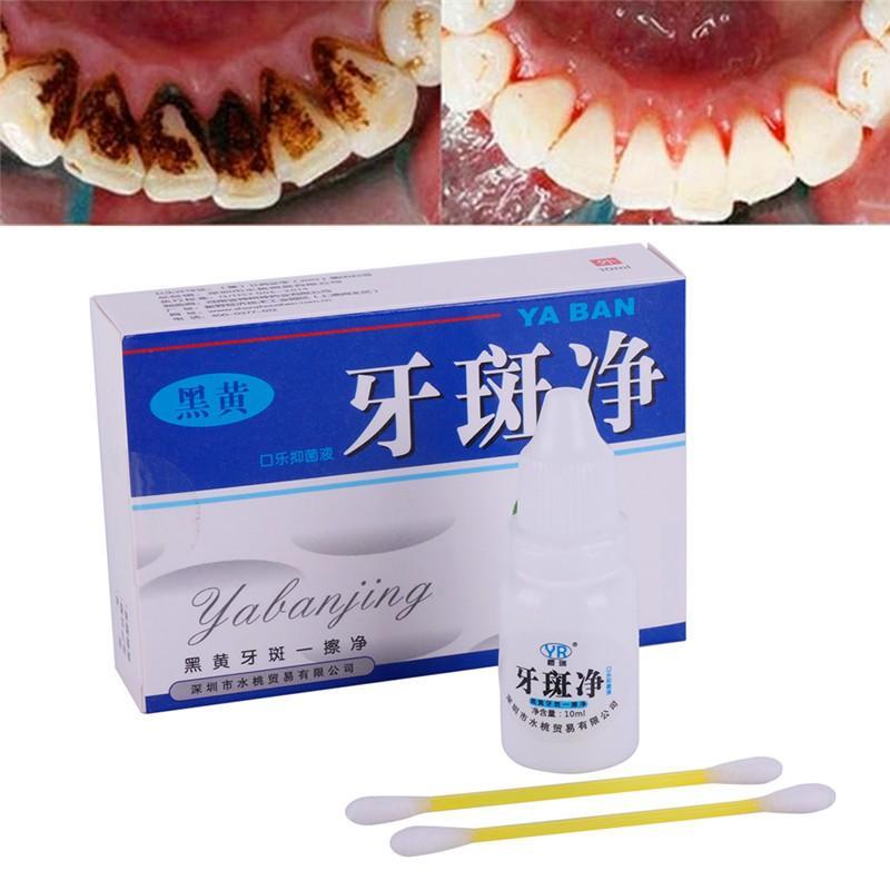Harga Diskon Pemutih Pembersih Karang Plak Gigi Karena Rokok Remover