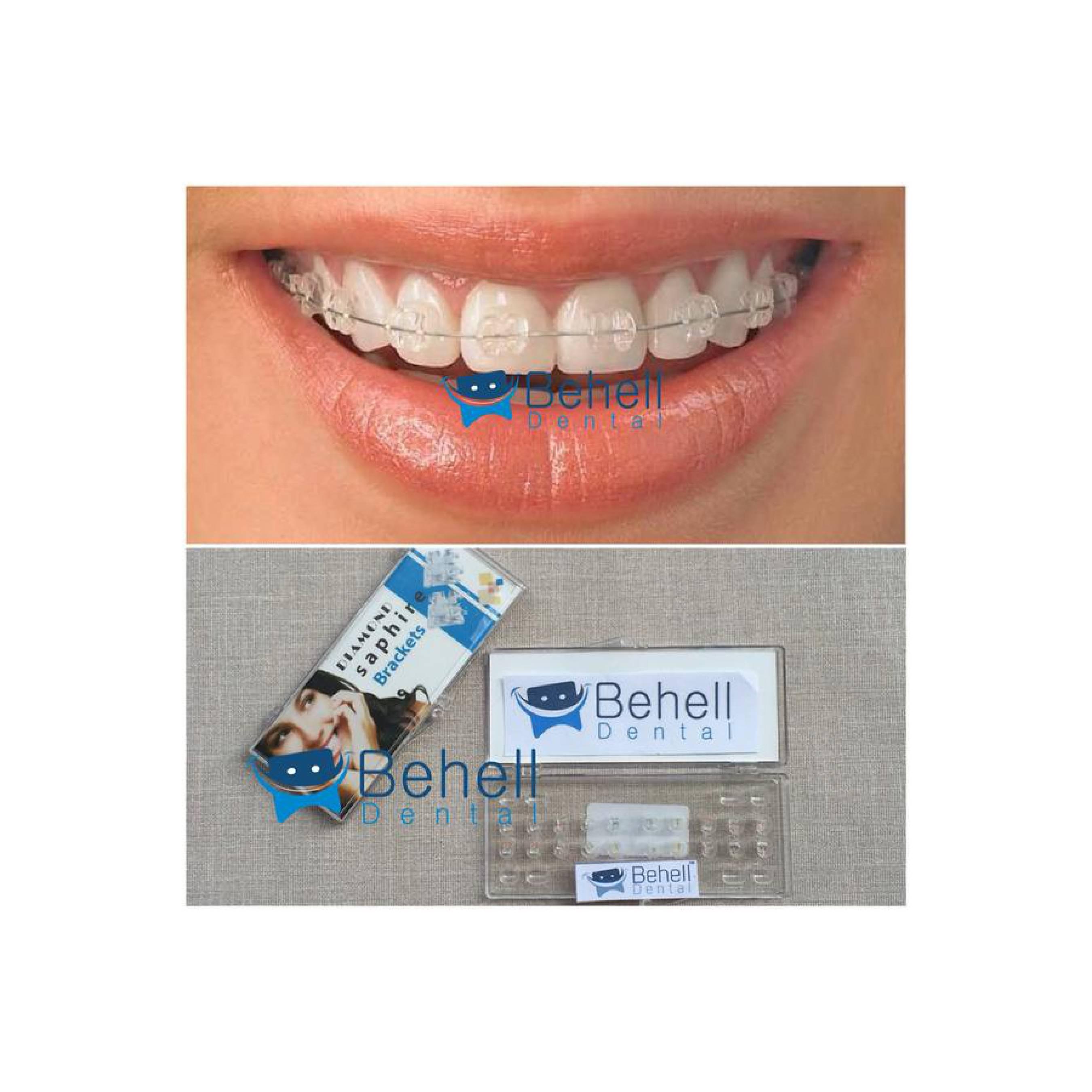 Paket Behel Permanen Ceramic Diamond Saphire