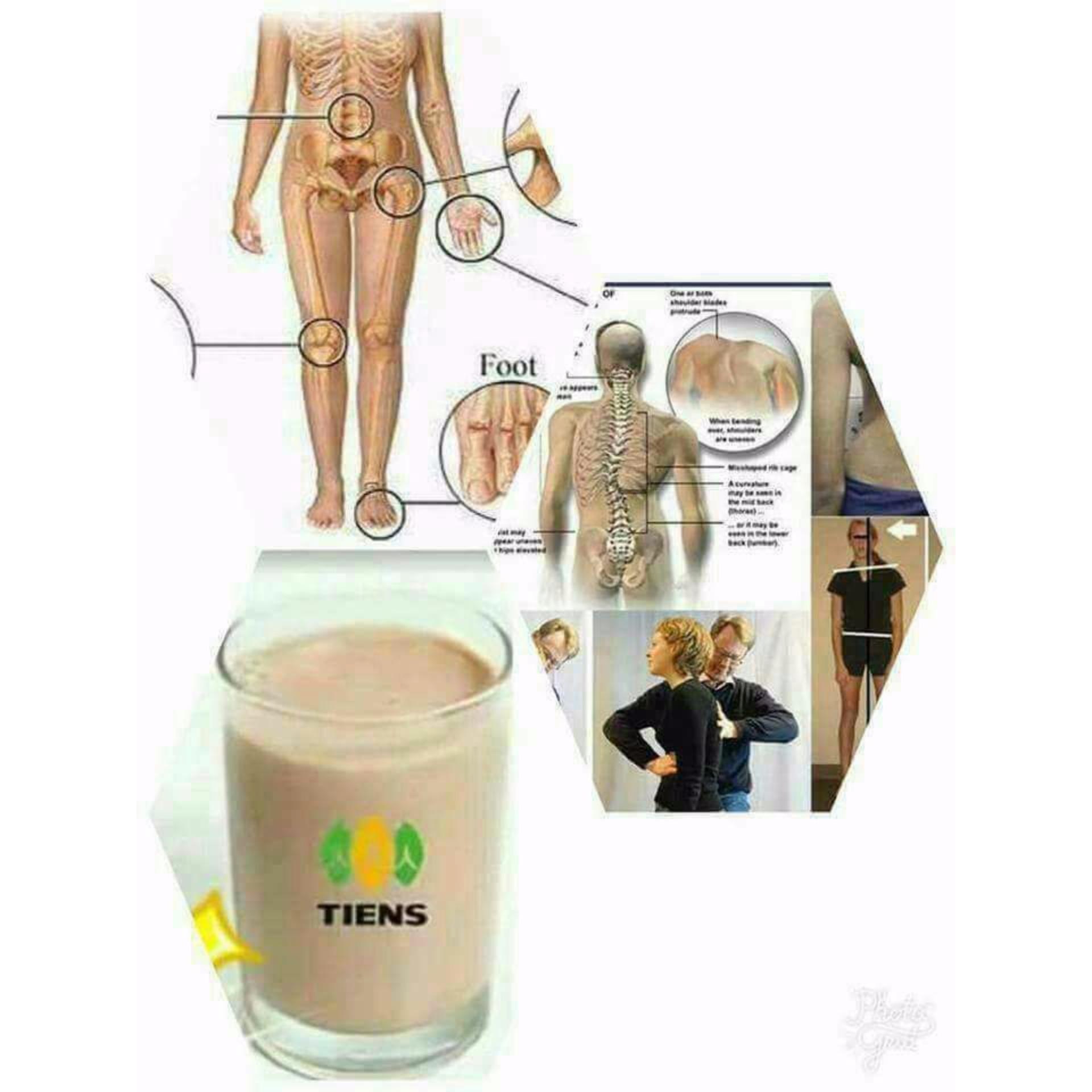 Beli Peninggi Badan Terbukti Paket Hemat 2 Sachet Tiens Nutrient Calsium Powder Lengkap