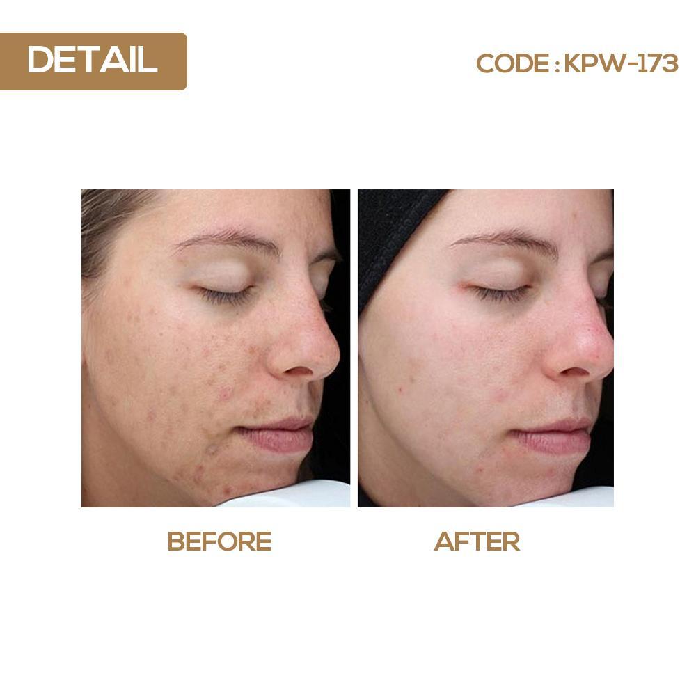 Fitur Serum Vit C Shin Khurim Bpom Vitamin For Face With Hanasui Collagen Whitening 14