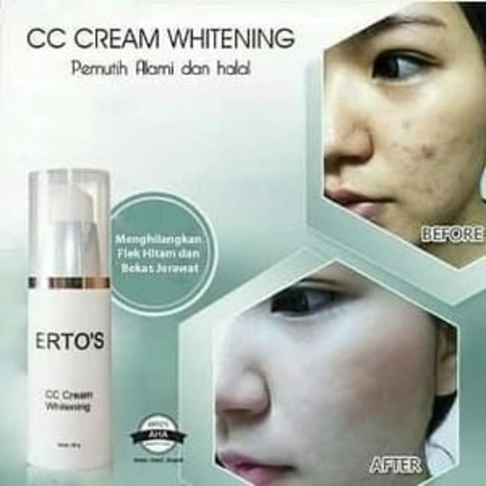 Fitur Whitening Cream Krim Pemutih Wajah Amos Penghilang Jerawat