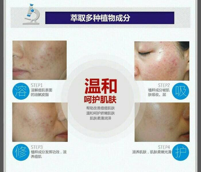 Bioaqua Anti Acne Anti Jerawat Removal of Acne - 3