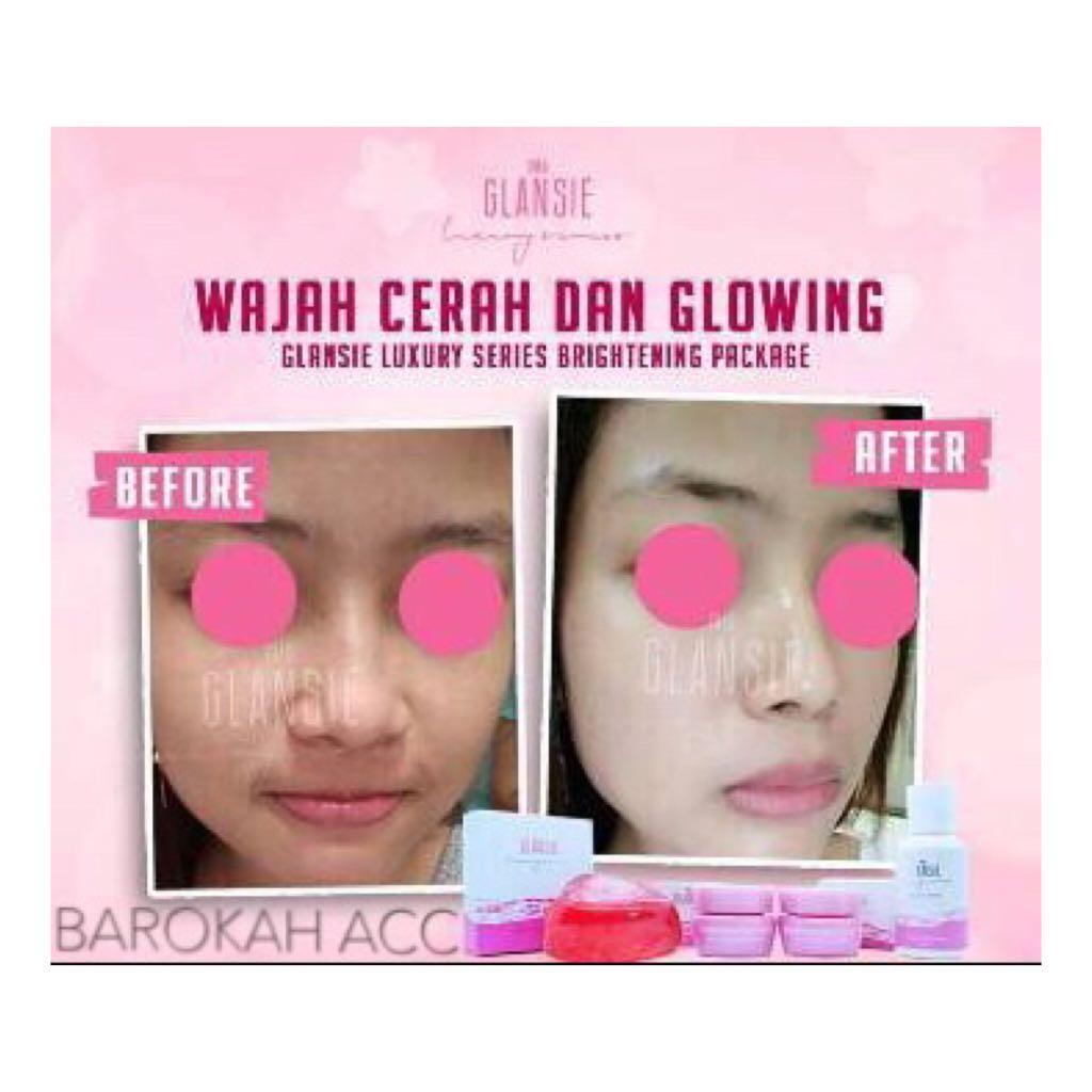 Cek Harga Baru Cream Wajah Glansie Luxury Series Bpom Paket Normal Beauty Care Drfajar Original Brightening Br 2