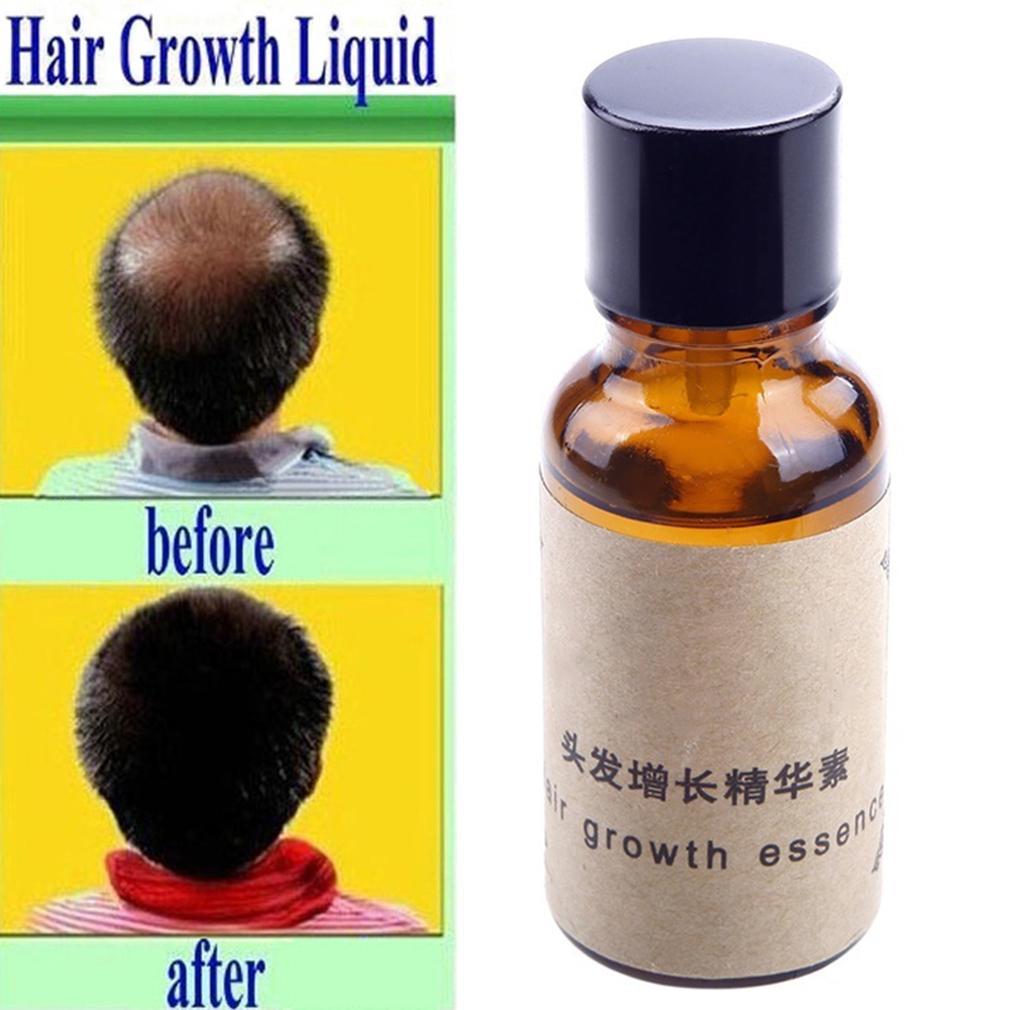 Fitur Hair Growth Essence Loss Dense Fast Sunburst Rudy Hadisuwarno Hairlossdefense Tonik Ginseng 225ml Restoration Pilatory 3