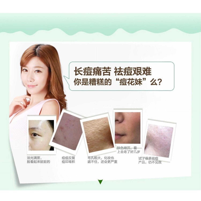 Bioaqua Cream Masker Wajah Aloe Vera 92% Lidah Buaya s2607- 220g - 5