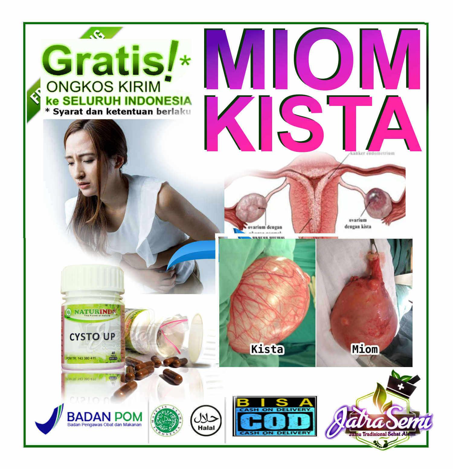 obat herbal cysto up naturindo (spesial myom & kista)