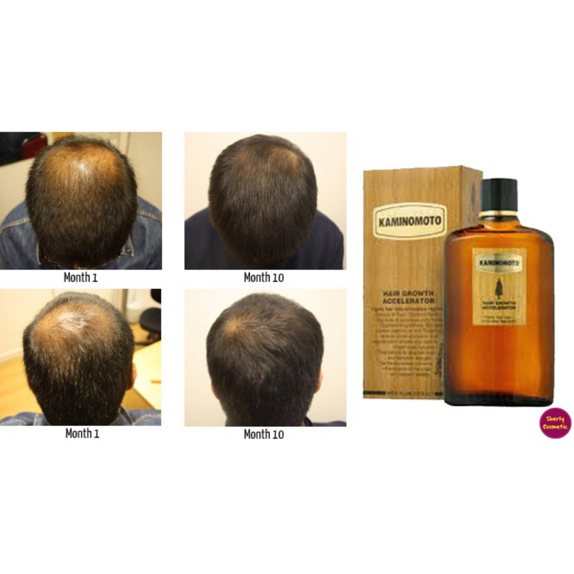 tonik kaminomoto / kaminomoto hair growth accelerator / tonik penumbuh rambut pencegah kebotakan best er original – 150ml