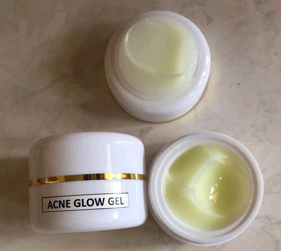 female mall acne glow gel white cream / krim malam jerawat memutihkan nya ampuh – terlaris
