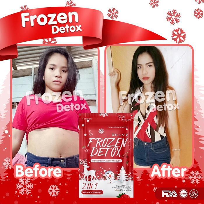 frozen detox diet pelangsing dijamin original/ frozen detox/ frozen detox asli/ frozen detox ori/ obat pelangsing frozen detox/ detox honey/ detox kaki/ detox pelangsing/ detox racun