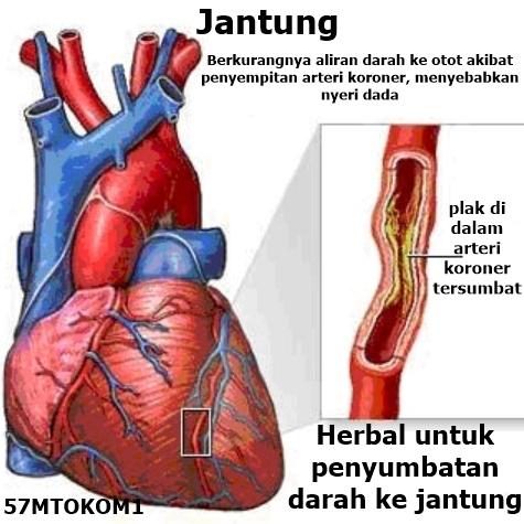 obat herbal  jantung koroner   melancarkan sirkulasi darah jantung   lemah jantung   nyeri dada   sesak nafas   cardiafit original